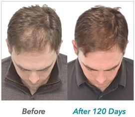 laser-hair-growth-example-1