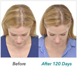 laser-hair-growth-example-2