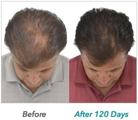 laser-hair-growth-example-3