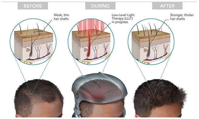 laser-hair-growth-process